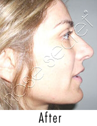 NoseSecret Home Photo After