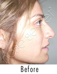 NoseSecret Home Photo Before